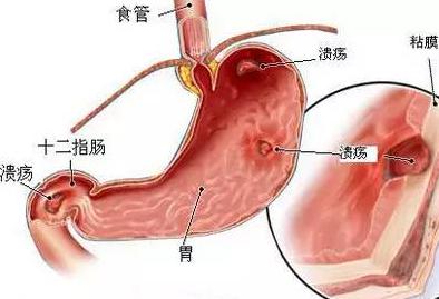 FOTIRC热像仪应用于腔内溃疡治疗探针检测